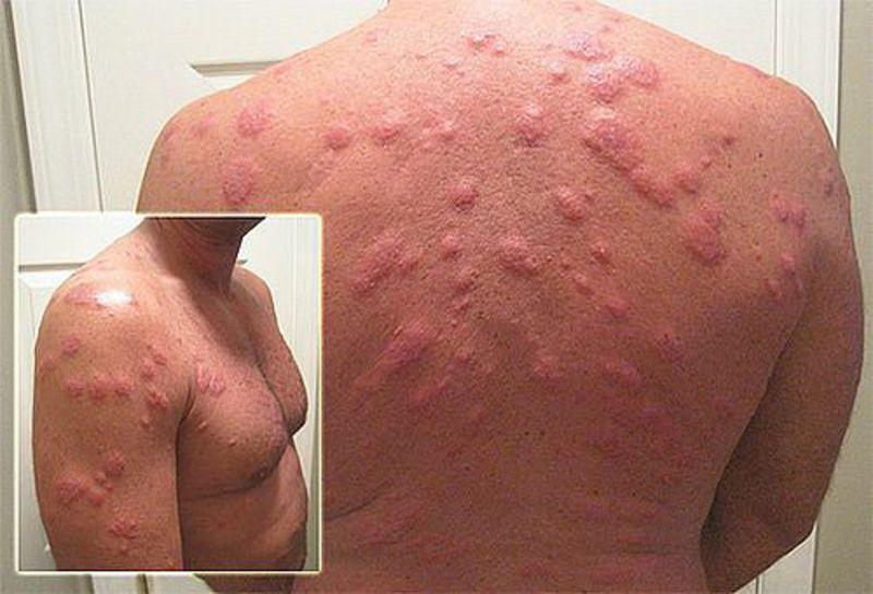аллергия на крем от загара