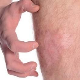 Аллергия на укусы блох у человека