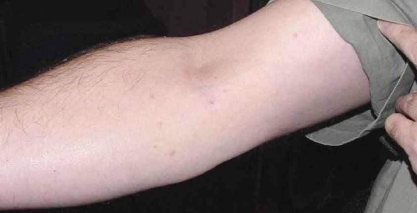 Последствия укусов клопов на теле человека фото